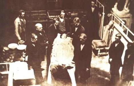 La prima anestesia con etere sperimentata a Boston per l' asportazione di un tumore, praticata inizialmente da un destista, William Thomas Green Morton, in alto a destra, che partecipa all' intervento .