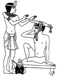 Cura per l'emicrania nell' antico Egitto